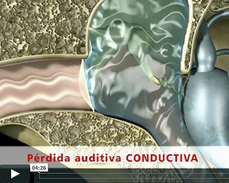 Aufbau und Funktion des menschlichen Ohres 3D-Videoanimation. Erklärvideo.